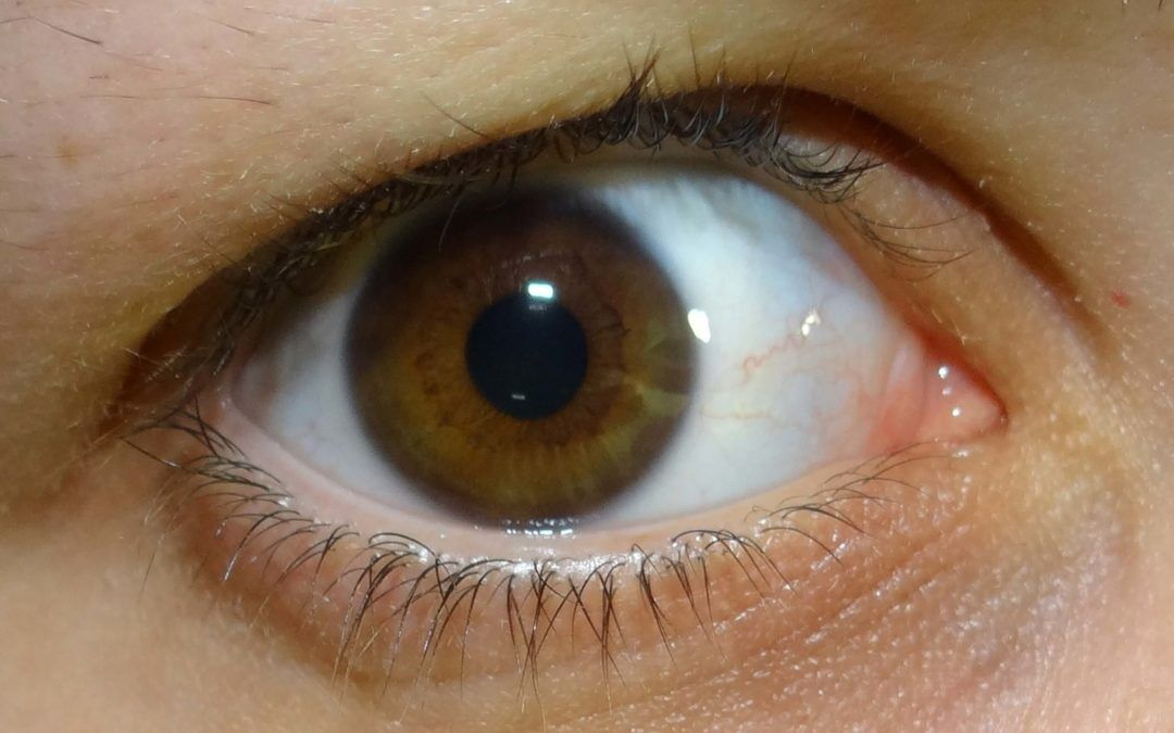 Dry Eyes: What They Are and How to Prevent Them